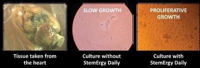 culture in petri dish